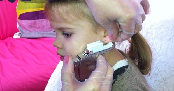 A fülbelövés menete és helyes technikája